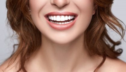 Dental care in Houston perfect white teeth