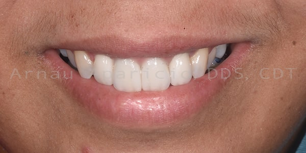 smile implants