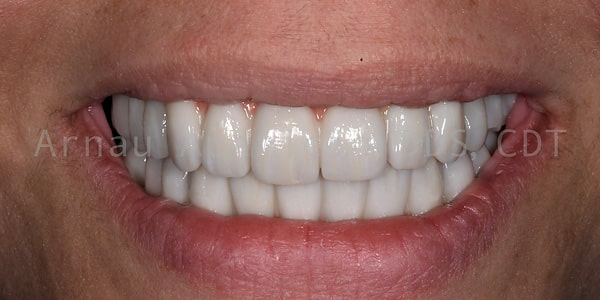 Smile tooth implants