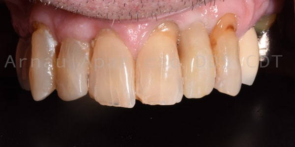 tooth implants near me